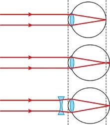 rövidlátás 1 56 hogyan lehet visszanyerni a látás szemgyakorlatait