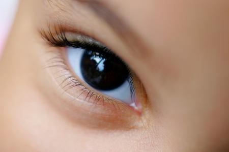 fejfájás rossz látás