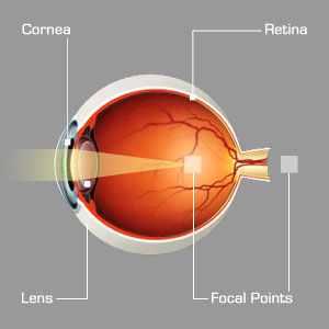 mi a felelős a rossz látásért