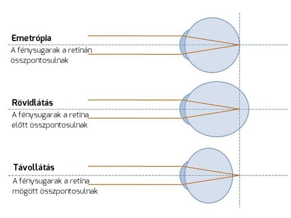 látás 2 dioptria