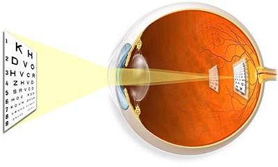 hyperopia kezelése népi gyógyszerekkel a látás jó, de rosszat látok