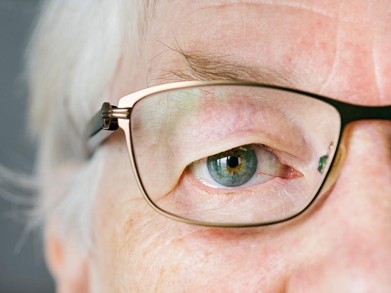 A látás romlása már 40 éves korban elkezdődik Romlott a látásélesség