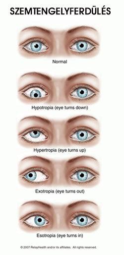 A szem betegségei, szemészet aloldal