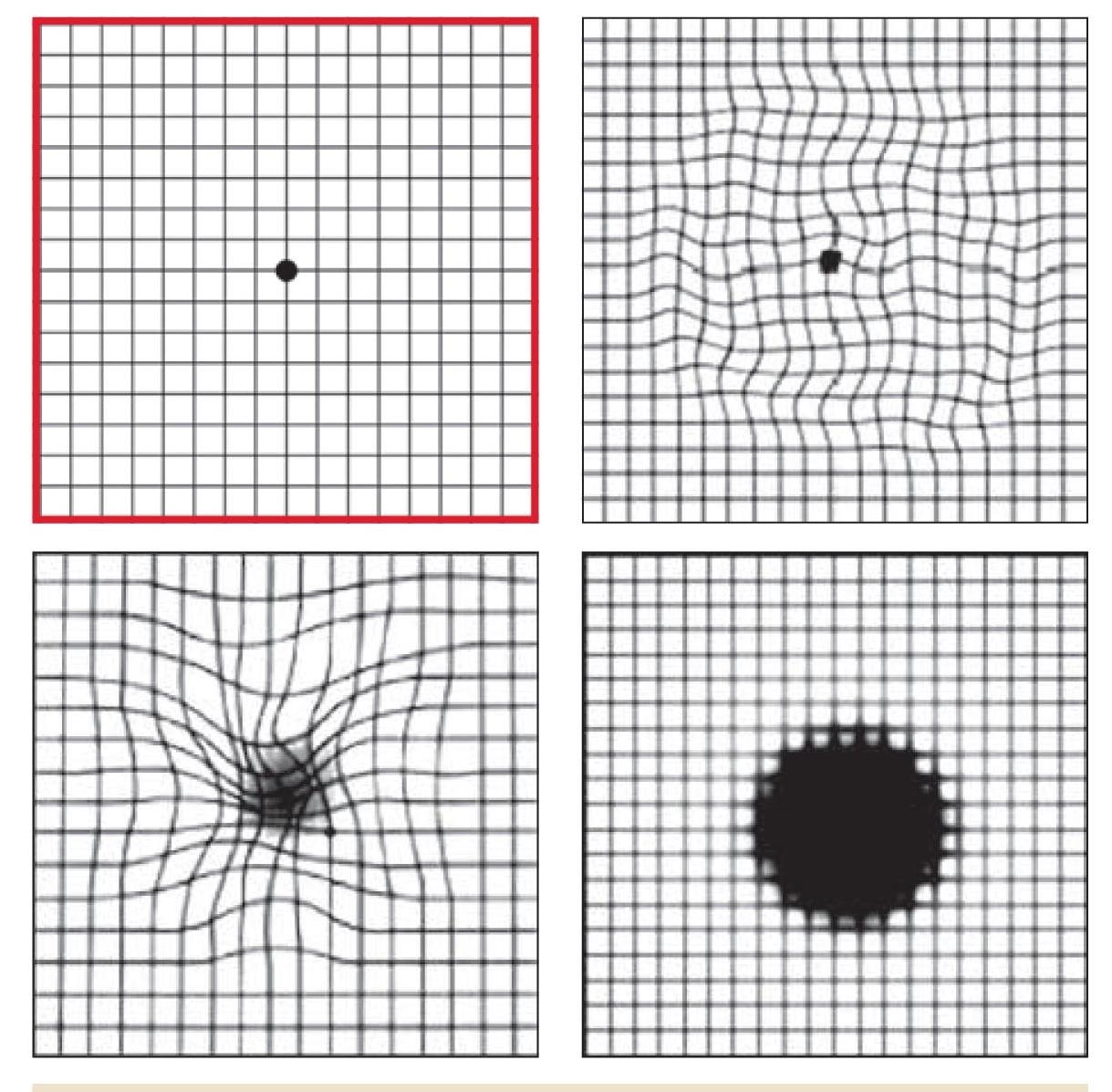 tesztek ellenőrzik a látást myopia másképp