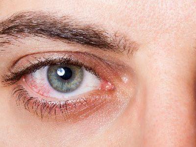 látás egészségügyi lecke