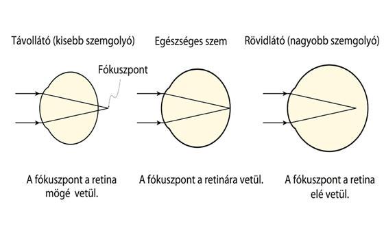 w típusú látásvizsgálati diagram