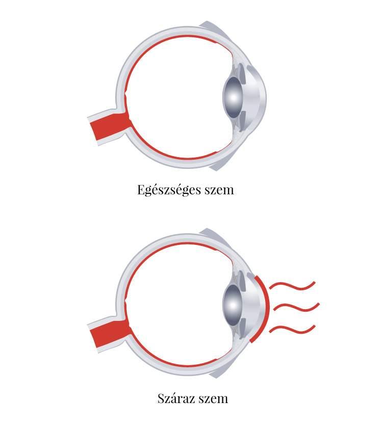 hogyan lehet szolgálni, ha rossz a látása