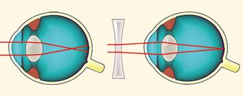 szemüveg teszt