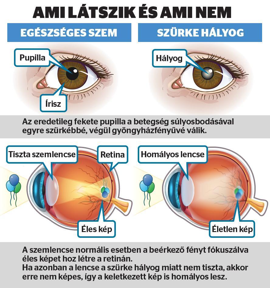 látás helyreállítása halott idegekkel sürgősségi segítség a szemésztől