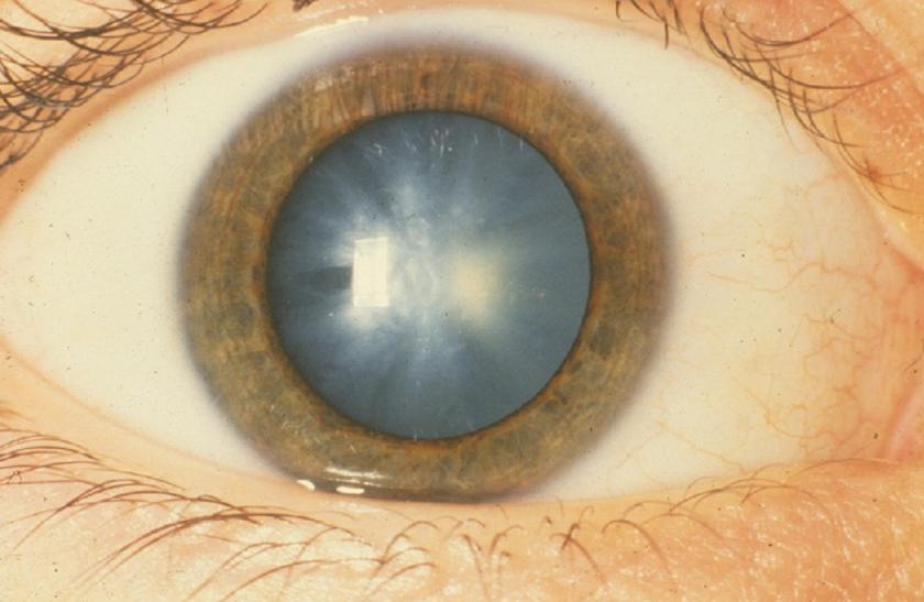 amit a látás érzékel myopia különböző dioptriák