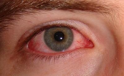 látástorna a szem számára