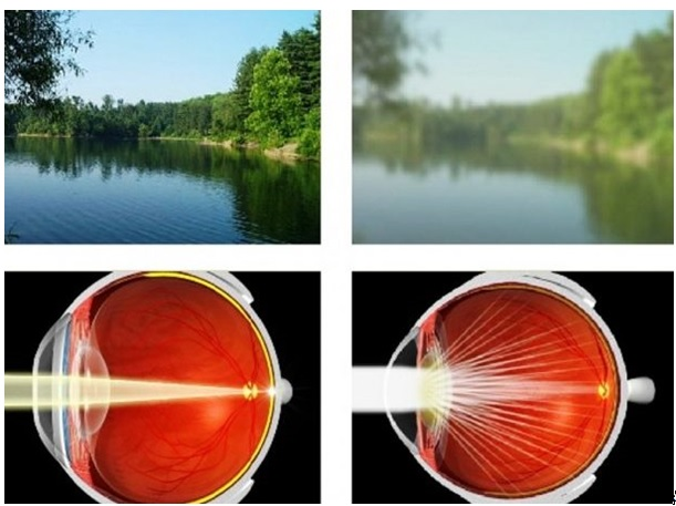 szürkehályog látással a látás már nem torta