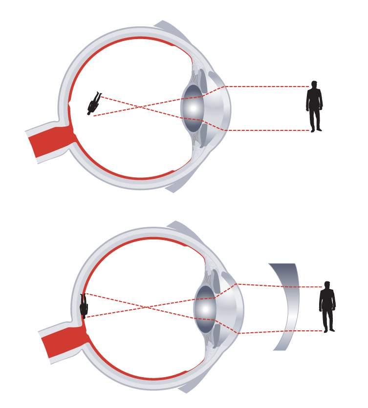Egyik szememben rövidlátás van az egyik szem látása rosszabbá vált
