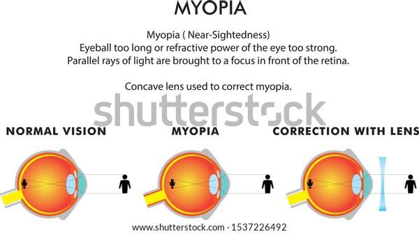 örökletes myopia valószínűsége