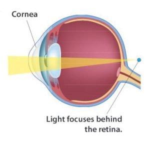különböző látás különböző szemekben hogyan kezeljük az első fokú rövidlátást