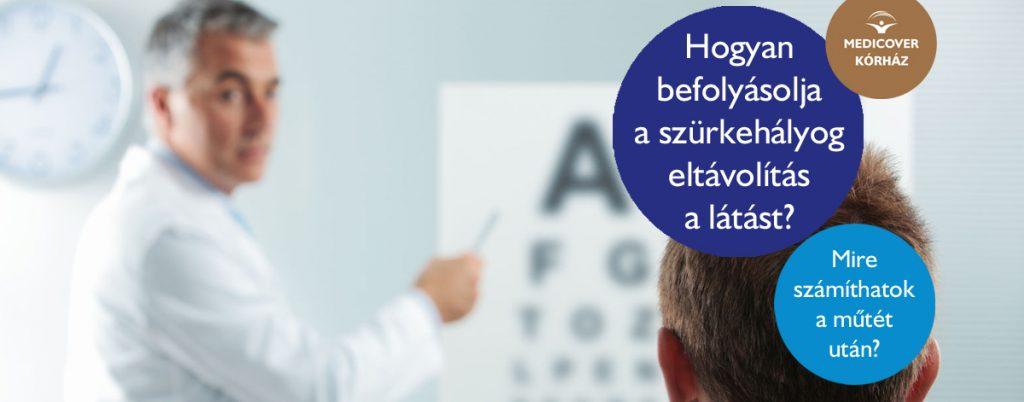 hogy a stressz hogyan befolyásolja a látást
