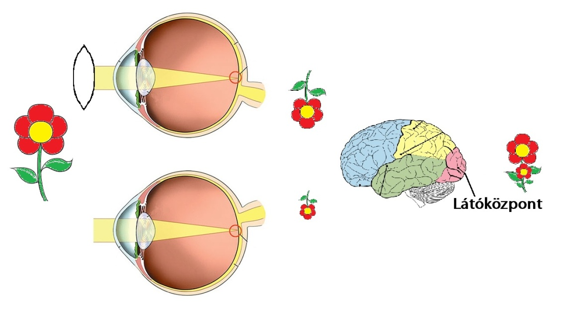 a látás kezelése gyertyával ha a látás mínusz 0,5, akkor rossz