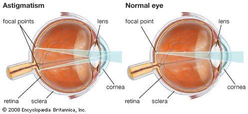 a mínusz és a plusz látása