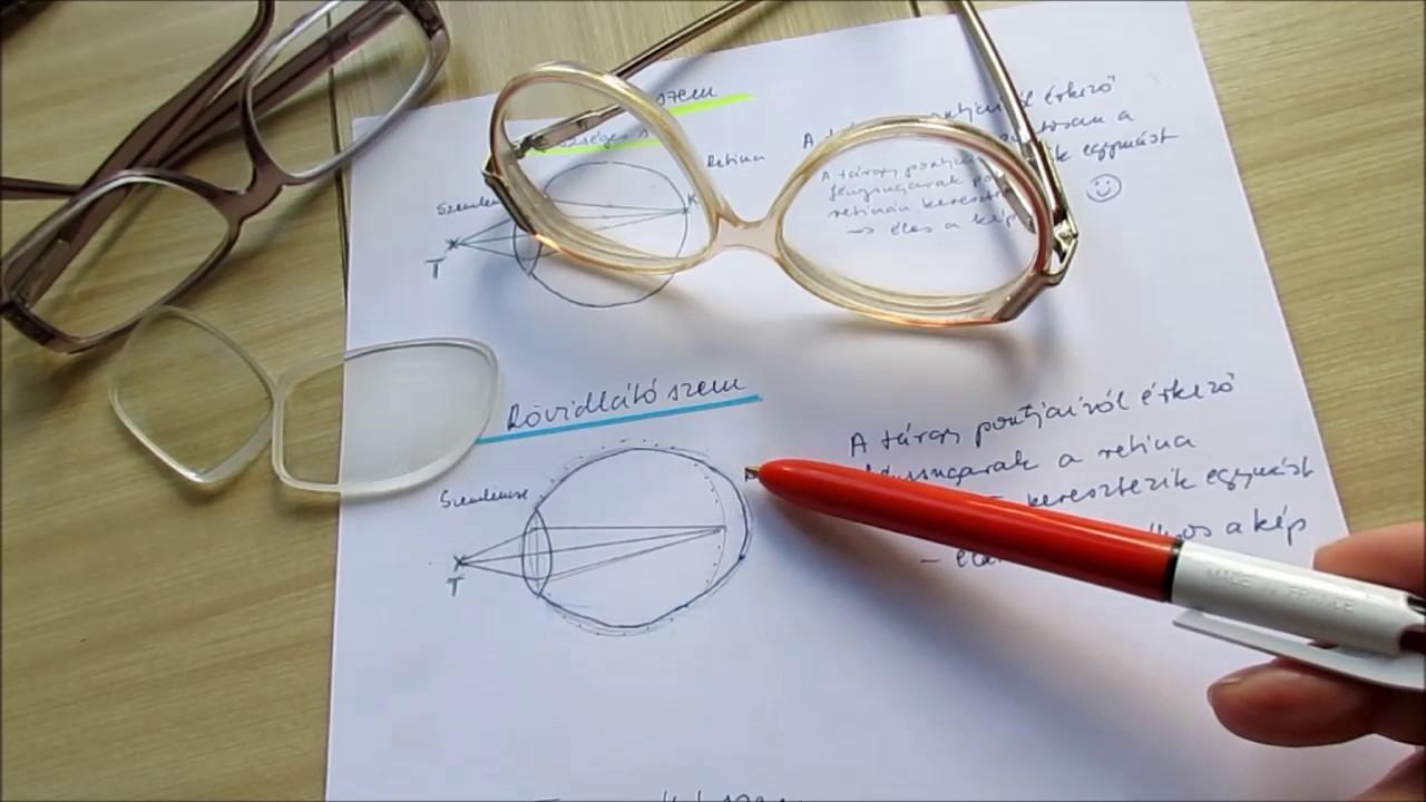 hogyan lehetne javítani a látási gyógyszereket