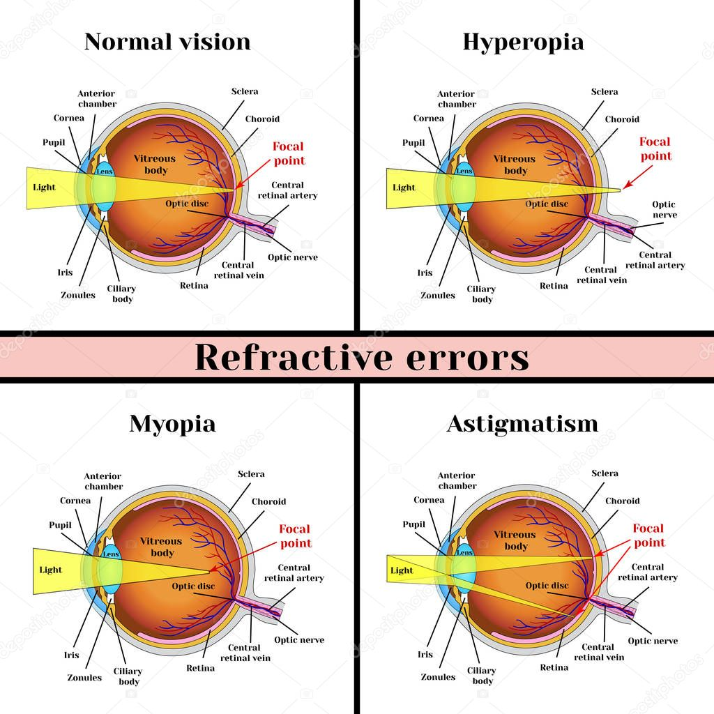 elhelyezési látásélesség rövidlátás és hiperopia