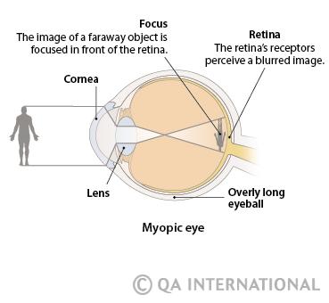mit érdemes enni a látás helyreállításához emberi látásmérés