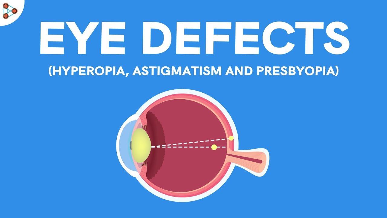 A szem veleszületett rendellenességei