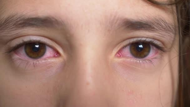 Gyenge látás közelről