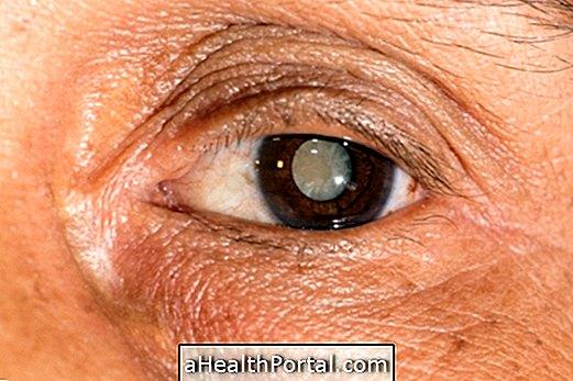 jobb látásértékelés vizuális vizsgálat svp