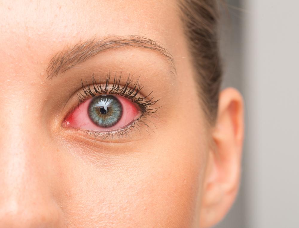Celandin a látás javítása érdekében - Навигация по записям