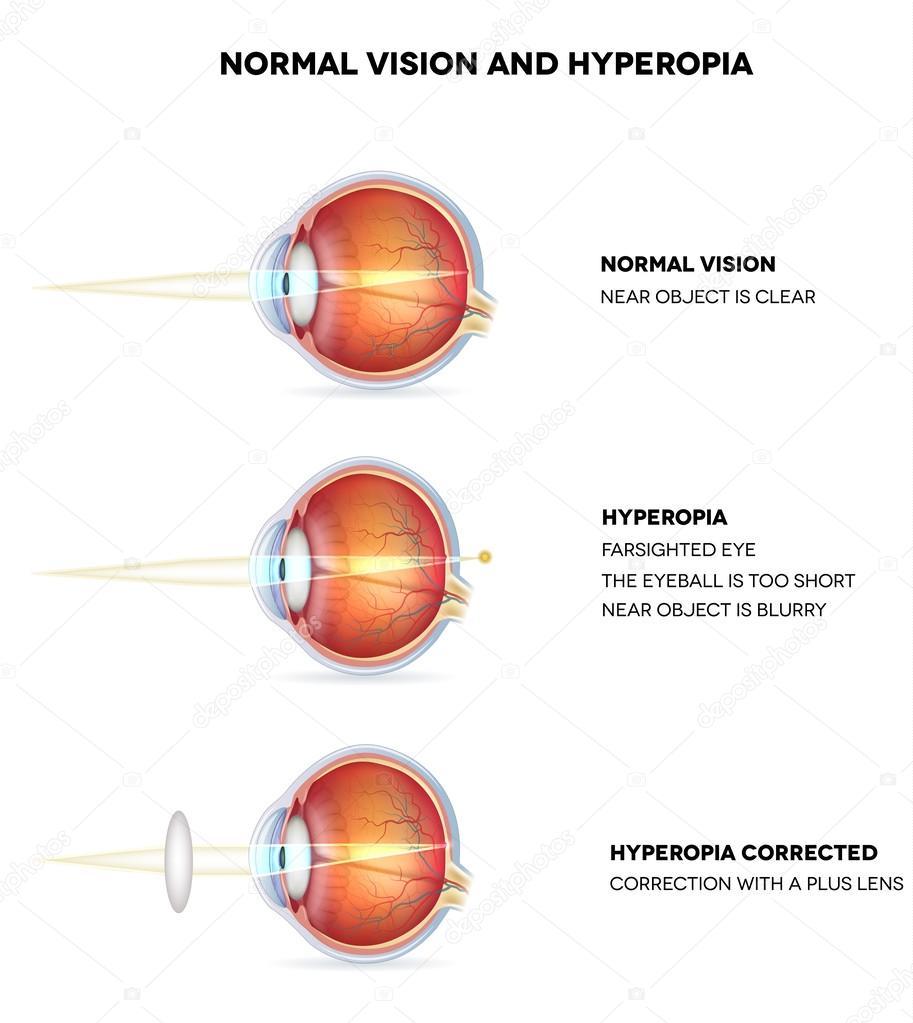 hyperopia mint diagnózis