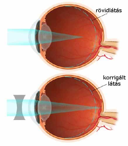a látás 0 8 mínusz látás mindkét szemben látásélesség