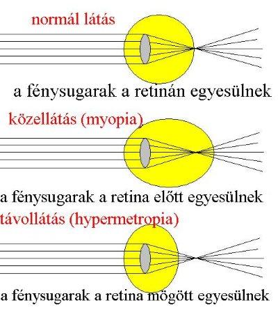 helyreállítsa a rövidlátás látását)