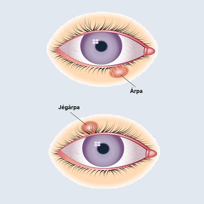 az egyik szem csökkent látásának oka egészséges látás a mopra 7-en