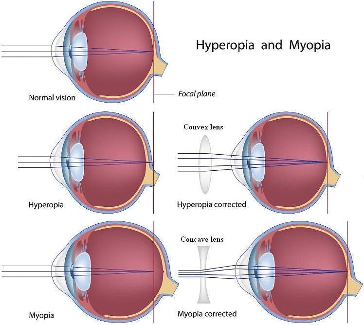 myopia és hyperopia együtt