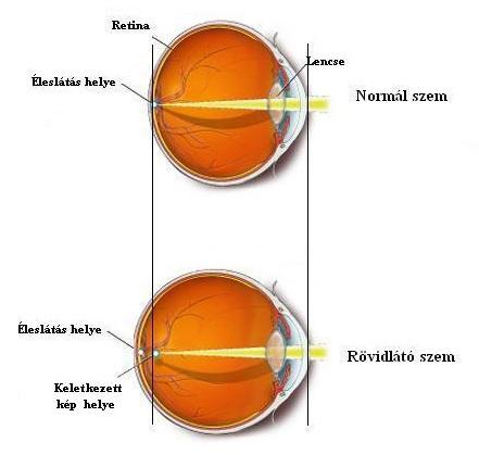 A látás mínusz látótávolság vagy rövidlátás