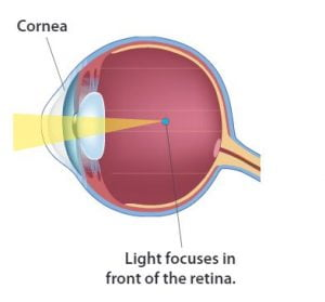 myopia gyakorlat kezelése