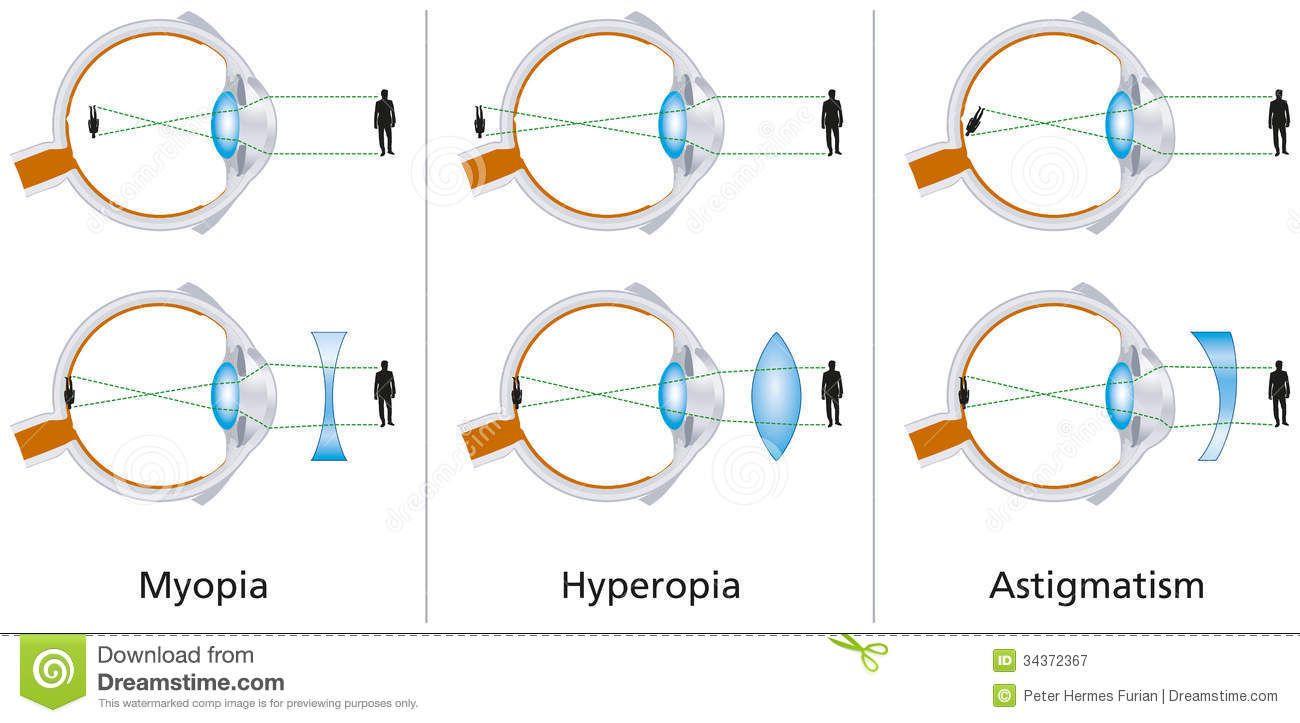myopia hyperopia diagram amikor ideges leszek, a látásom romlik