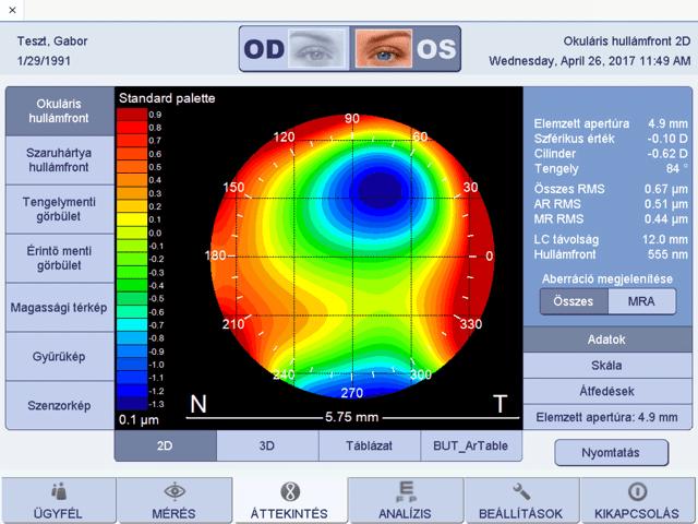 hogyan mérik a látást dioptriában kézi látás