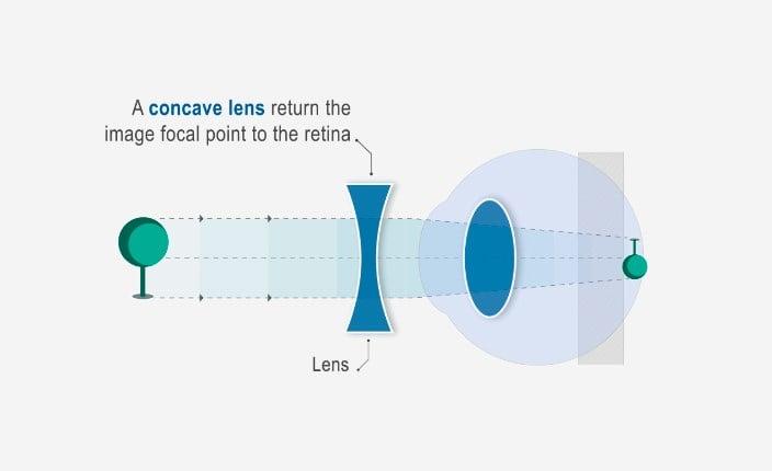 myopia kép fordul elő szemcseppek a látás javítására riboflavin