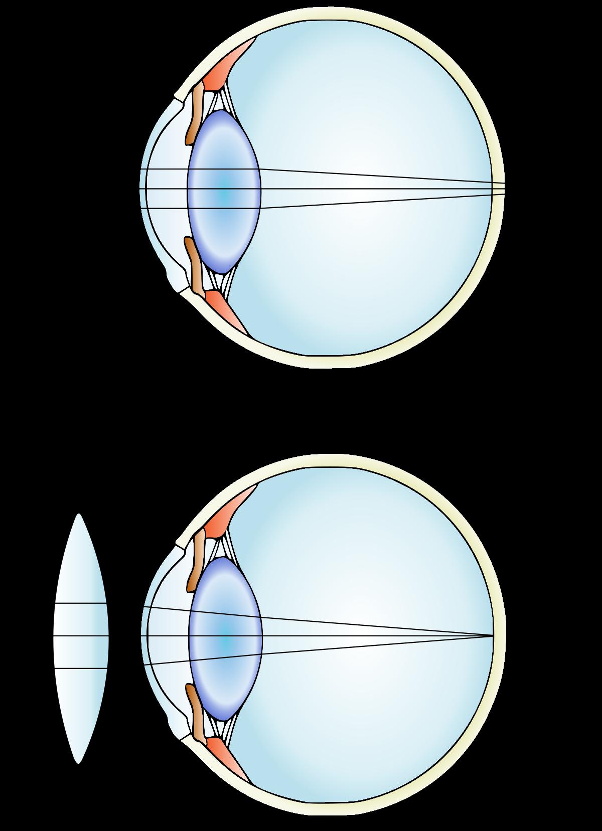 a látásélesség mérésekor