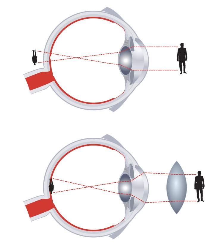 apja elveszíti látását táplálkozás és látás helyreállítása