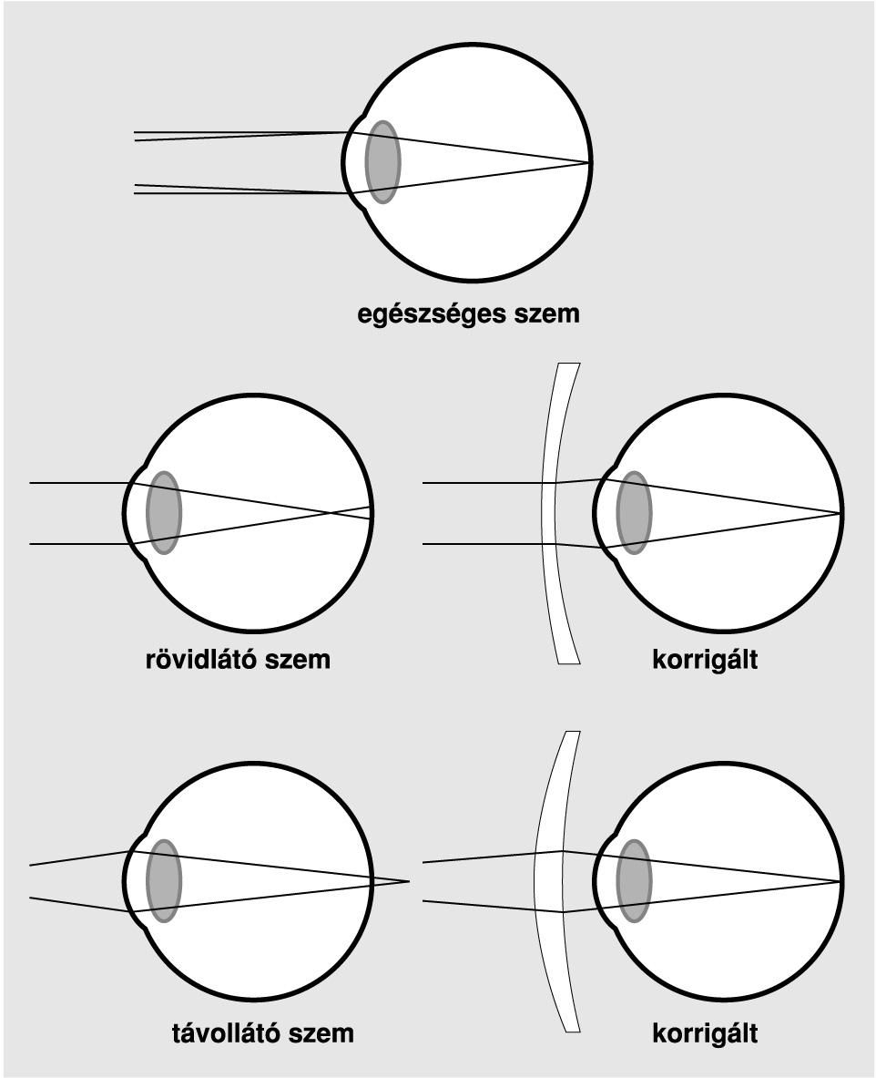 rövidlátás milyen betegség látás 7 vonal