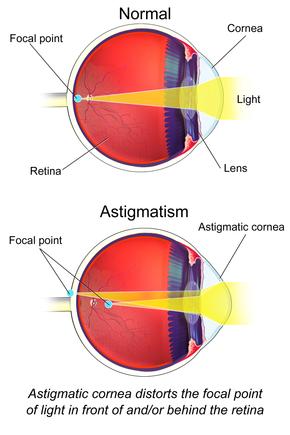 myopia ajánlások