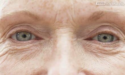 a rossz látás miatti szem ráncok)