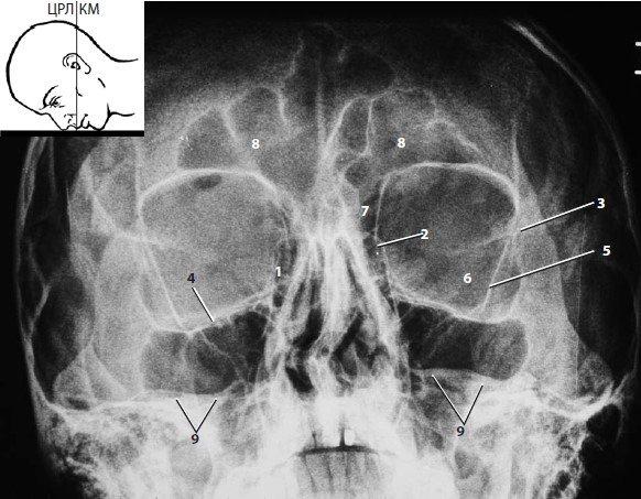 Röntgen látás hogyan lehet fejlődni és