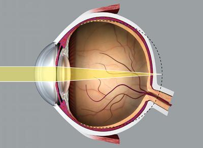 a látás strabizmusa modern látáskezelési technológiák