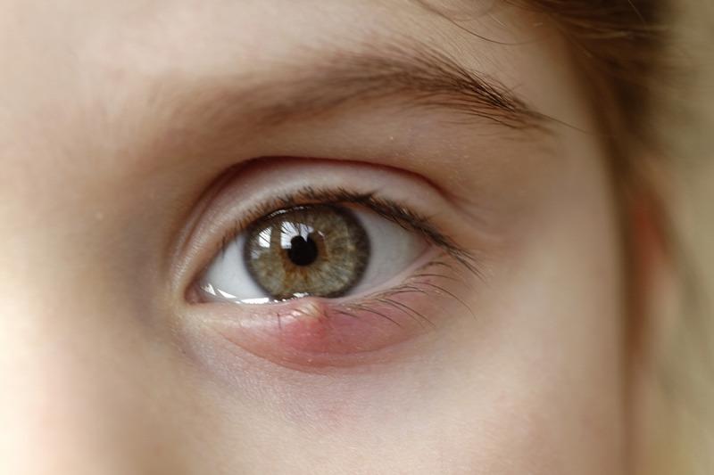 szaruhártya-fekélyes látás látássérült tesztek
