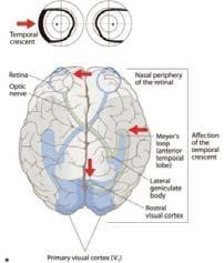 mi a látás angiopathia