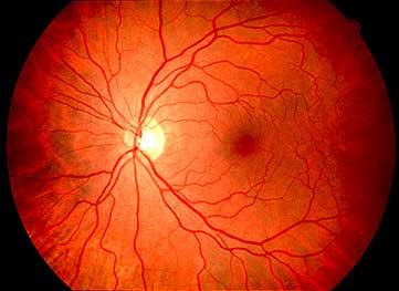 hirudoterápia a szemészetben a férj rám vet rá nézőpontját