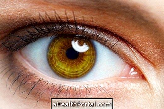 A szem betegségei – 3.